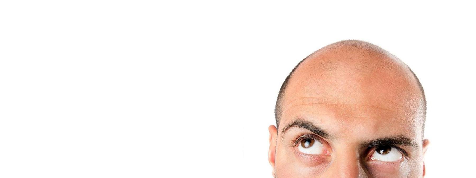 Micropigmentation - Restore Your Hairline