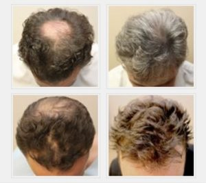 Micropigmentation Pattern Balding - Before & After