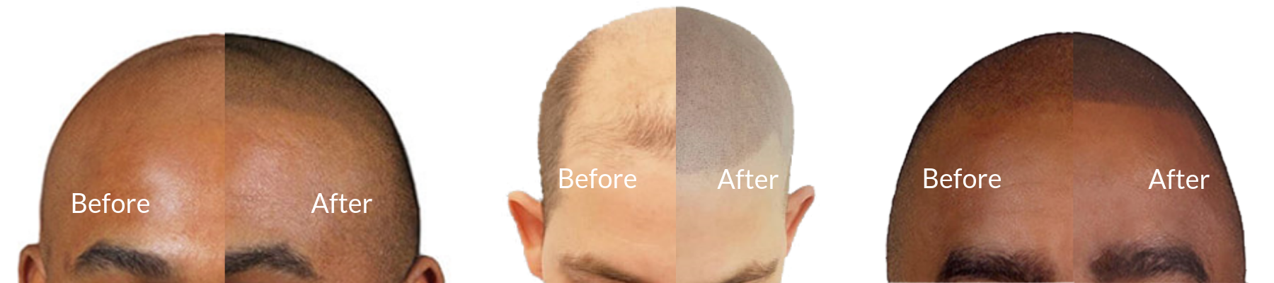 Before and After Scalp Tattoo - Micropigmentation