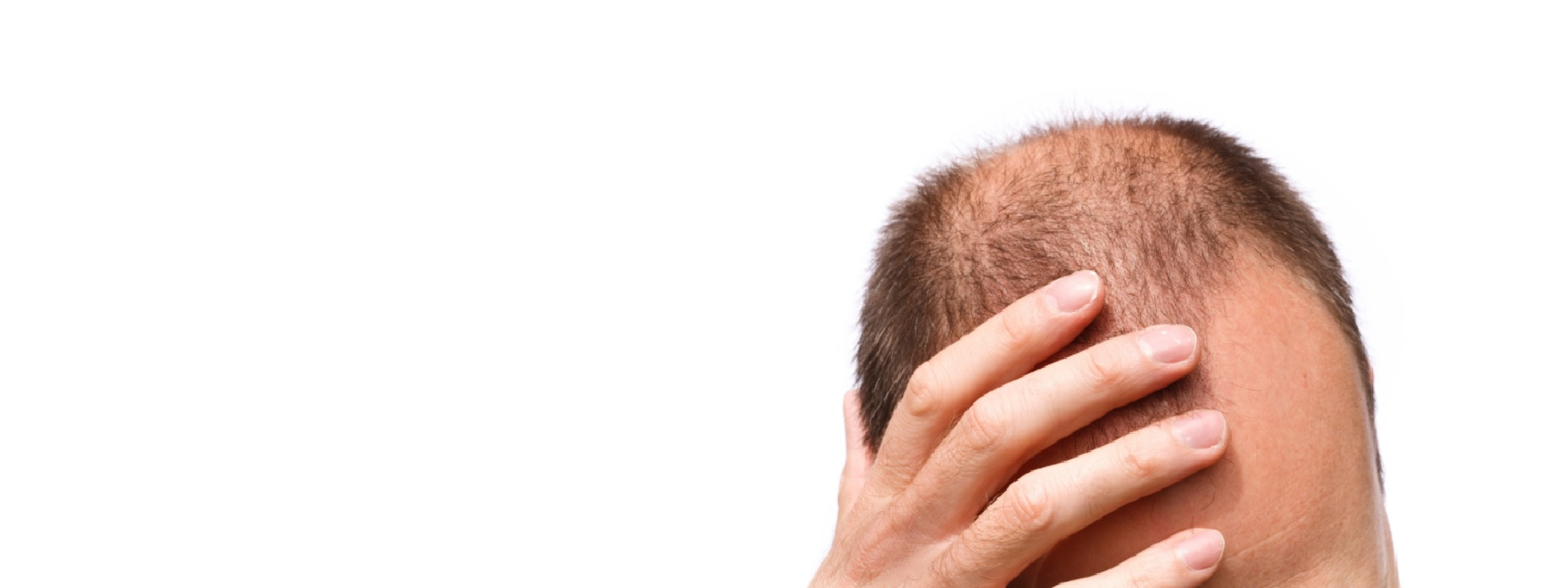 Micropigmentation Pattern Balding